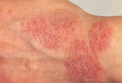 Как выглядит дерматит начальная