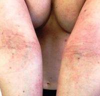 Лечение атопичного дерматита в Одессе