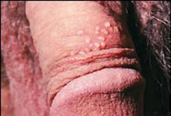 genitalnui-gerpes