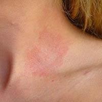 Лечение аллергического дерматита в Одессе