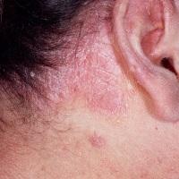 Лечение себорейного дерматита в Одессе